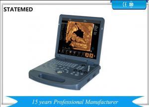 China High Definition Image Portable Ultrasound Scanner 3d 4d For Pregnancy on sale