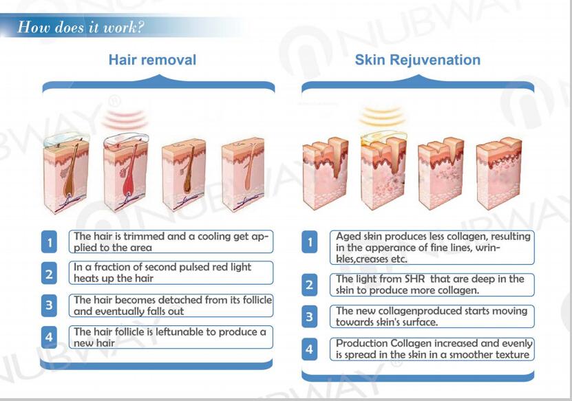 3 Working Principle of Super SHR IPL Laser hair removal.jpg