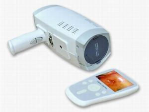 China Lens Resolution 800000 Pixels Digital Electronic Colposcope With Automatic Electronic Shutter 3.5 Inch Handheld Screen on sale