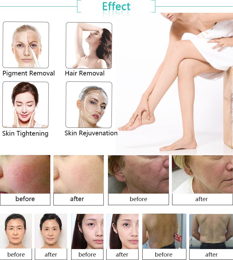 Skin Guardian!! IPL laser hair removal / IPL Skin Rejuvenation Machine Price / IPL machine price with CE