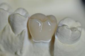 China Sinora Cercon CAD/CAM dental zirconia crown on sale