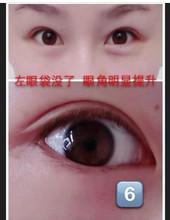 China CE Certificate Medical Sodium Hyaluronate/Hyaluronic Acid Gel (For Eye Surgery Viscoelastic) on sale