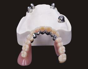 Removable metal dental precision attachments telescopic dentures