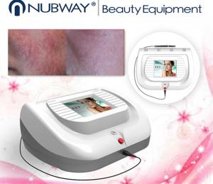 China 2018 Hot SALE Spider Vein Removal skin tags removal Machine Nubway Vascular vein removal on sale