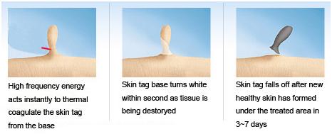 skin tags dansk