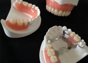 China CAD/CAM Design PFM Dental Crowns Bridge Smooth Surface High Definition Customized on sale