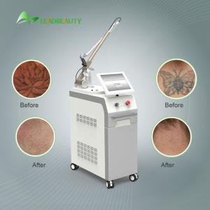 China Competitive price long pulse nd yag laser permanent hair removal machine imported from South Korea on sale