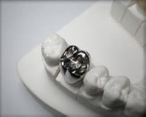 China Full Metal Crowns (YS-FM) on sale
