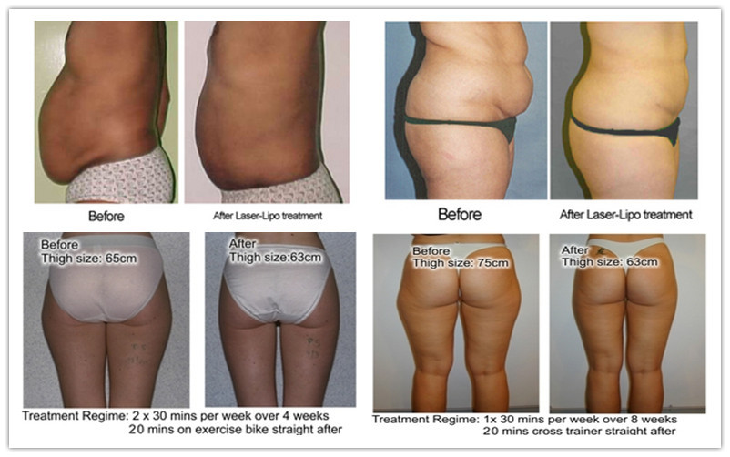 super diode laser slimming machine before after picture.jpg