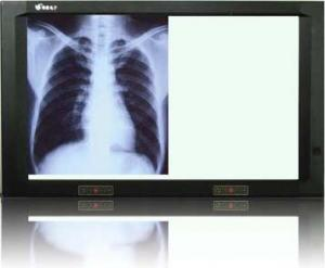 China medical x-ray view box  on sale
