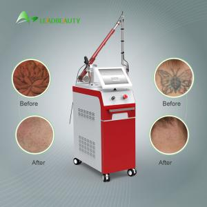 China New tattoo removal q-switch nd yag laser with CE with promotion price for spa on sale