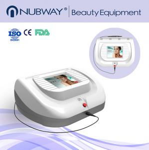 China Professional 30MHz portable spider veins vascular and acne removal machine on sale