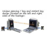 Medical Diagnosis Equipment 3D/4D Color Doppler Ultrasound