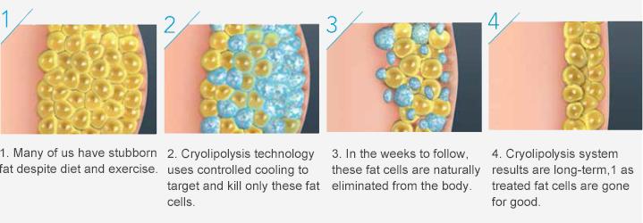 Anti - Puffiness Cryolipolysis Slimming Machine 2 Handles Cellulite Removal Machine