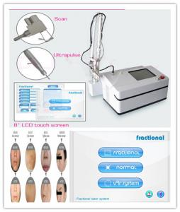 China Clinic Carbon Dioxide Ipl Laser Machine For Skin Rejuvenation on sale