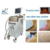 Fast Vacuum Laser Hair Removal Machine Comfortable Permanent Hair Reduction