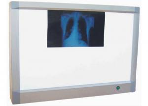 China Aluminum Alloy X Ray Viewer for Two Films Medical X Ray Machine supplier