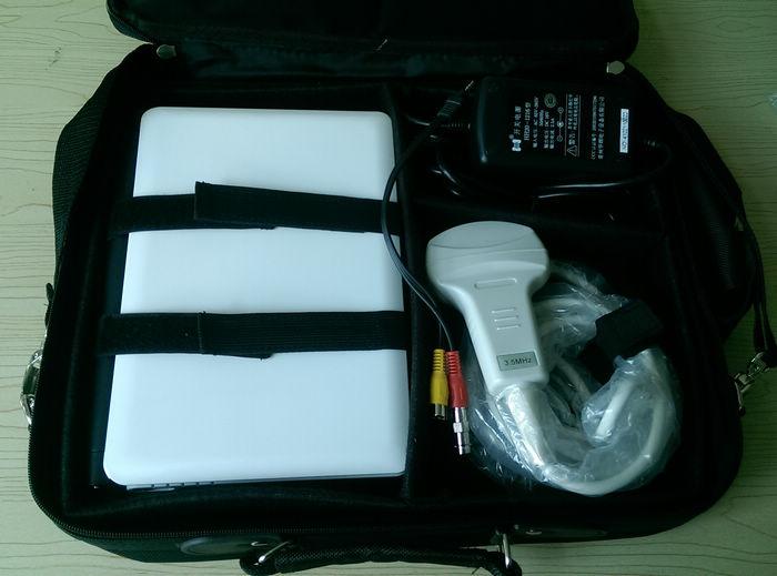 Digital Mobile Laptop Ultrasound Scanner Diagnostic System Ultrasonic Machine