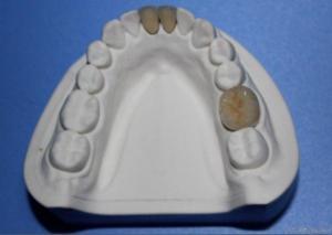 China Dental Porcelain Fused To Metal Crown on sale