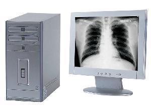 China X-ray Film Digitizer on sale