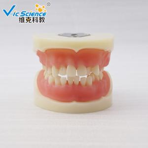 China VIC-E15 Teeth Study Model Artificial Physician Certified Tooth Extraction Model on sale