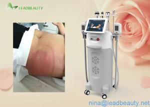 Cryo/Ultrasound/RF heads Multi-functional Cryolipolysis