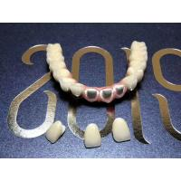 China Titanium Removable Restorations Dental Bridge Individually Designed For Dental Clinic on sale