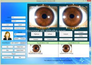 China USB Digital Iriscope scanner ,Eye Iriscope, Iridology camera equipment GY-9811U on sale