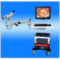 opticelectroniccolposcope