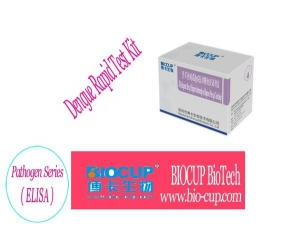 China ENGLISH The Reagent Box of Enzyme Immunity of Dengue Virus IgG Antibody on sale