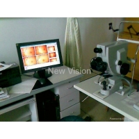 Digitalize / Upgrade Zeiss fundus camera