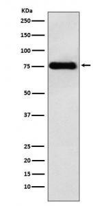 China LYRIC Antibody (CY7187) LYRIC Antibody on sale