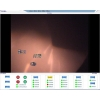 China Flame monitoring  Boiler slagging coke monitoring system for sale