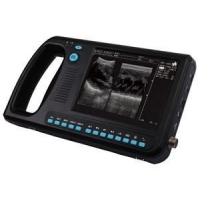 China WED-3000 Full Digital Ultrasound System on sale