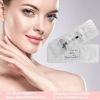 China Sodium Hyaluronate Gel Dermal Filler Injectable Hyaluronic Acid 1ml DERM L for Treatment Wrinkles for sale
