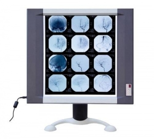 China LED X-ray film viewer on sale