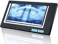 China Dental x-ray film viewer on sale