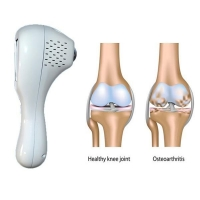 Knee Pain Relief Laser Device