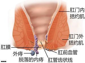 China Hemorrhoids on sale