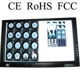 China double x-ray film viewer hospital supplies on sale