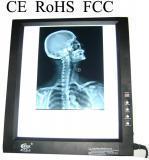 China single LED x-ray film viewer negatoscope on sale
