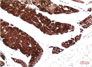 China Muscle actin Mouse Monoclonal Antibody(1E9) on sale