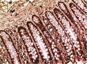 China Gamma Tubulin Mouse Monoclonal Antibody(7B1) on sale