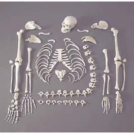 China Disarticulated Human Skeleton (200 Bones) on sale