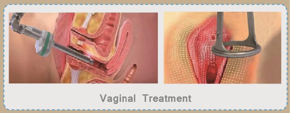 Laser Vaginal Rejuvenation In Tijuana, Mexico