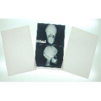 China Medical Films Medical x-ray film on sale